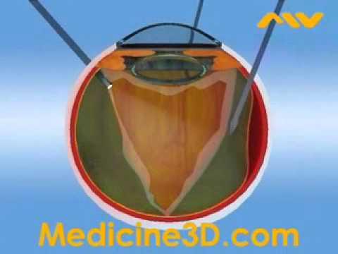 Микрохирургические операции глаз.  Клиника микрохирургии глаза на Маерчака. (Красноярск)