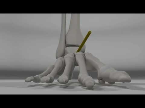 При наклоне головы вперед резкая боль в спине