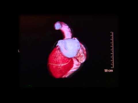 Trajtim SDA e hipertensionit fraksion 2