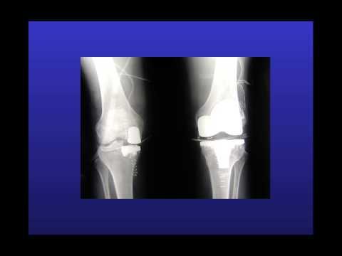Sia la radiografia appare artrosi dellarticolazione del ginocchio