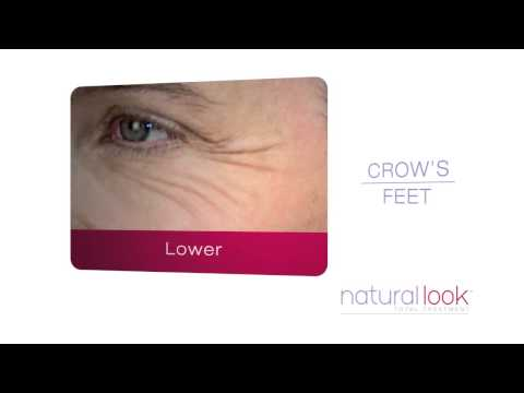Natural Look - Upper Face Lines