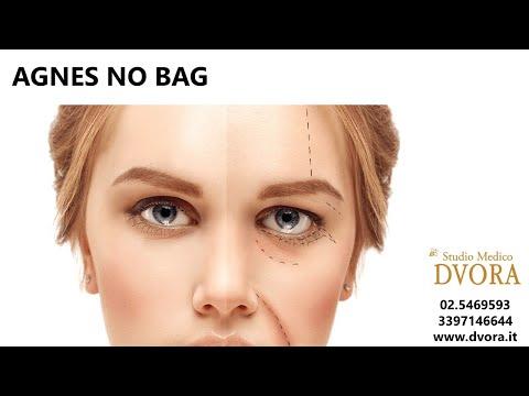 Come rimuovere borse sotto occhi in 10 min.
