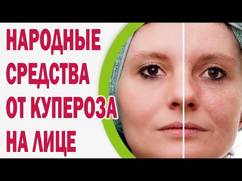 Народные средства от купероза на лице