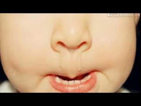 Az aceton szaga a szájból, mint kezelni. Aceton szaga a szájból