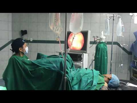Masaje de la próstata cómo hacer estimulador