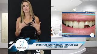 MIERCOLES 26/09/2018 | PREGUNTAS Y RESPUESTAS CON LA DRA. DEBBIE | Top Dental