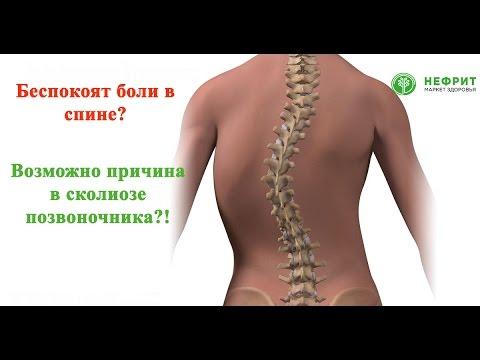 Боли в Спине? Сколиоз: Причины, Симптомы и Лечение
