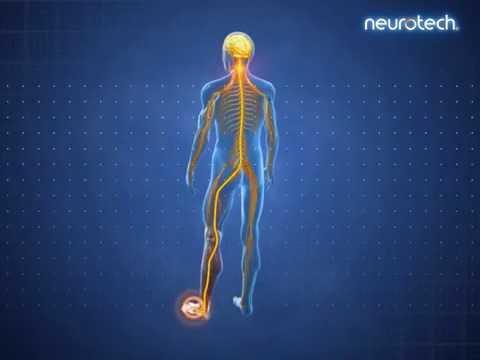 Eine Reihe von Übungen mit Arthrose des Gelenkes