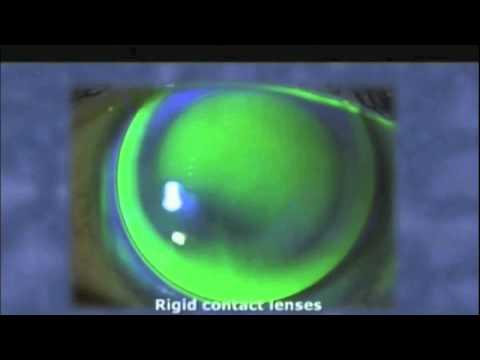 Hogyan kell kezelni a látást mínusz 4