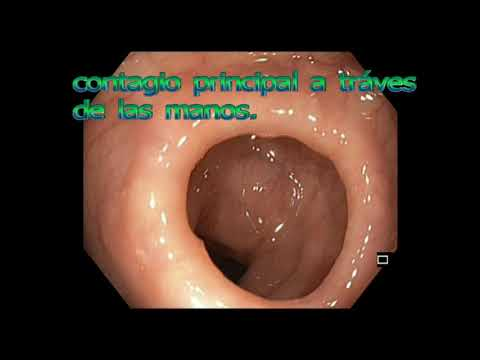 Gastric cancer ascites