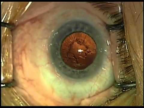A szem fáj; a látás romlik