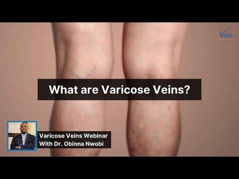Cum să împodobiți picioarele de la varicoză