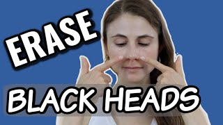 Erase blackheads: dermatologist tips| Dr Dray