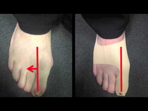 กระแทกบนใหญ่เท้ารักษา