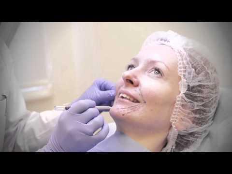 Raukšlių užpildymas botulino toksino injekcijomis smakro ir lūpų zonoje