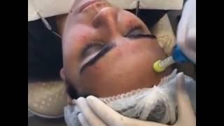Comfort-in Estetik İğnesiz Anestezi Enjeksiyon Uygulaması
