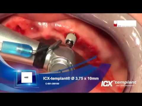 Wenn implant in der Brust umgewandt wurde was zu machen