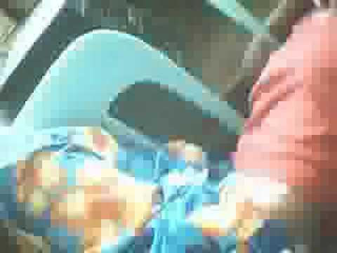 Concealer Itinatago dark spots review