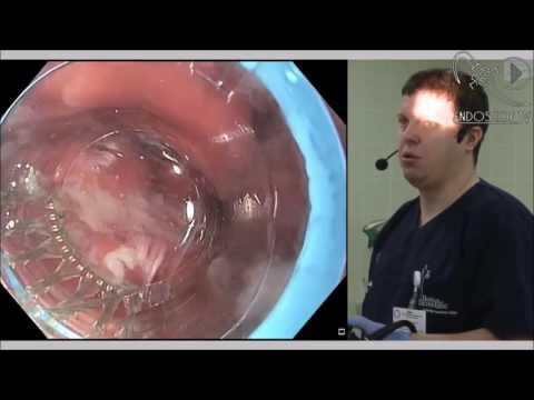 При положительном гепатите с какие должны быть анализы
