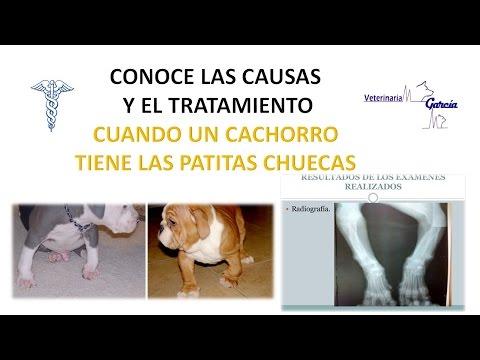 Los resúmenes para la prevención de la osteocondrosis