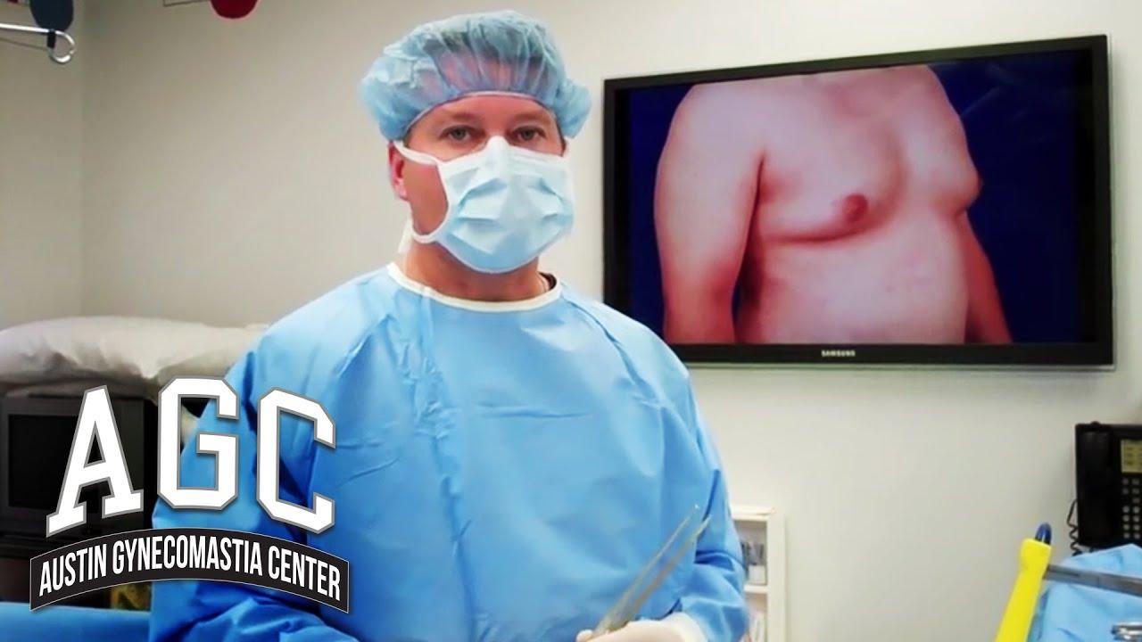 How Gynecomastia Surgery Works: Liposuction vs Surgery - Austin Gynecomastia Center