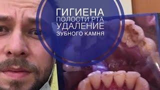Удаление зубного камня , профилактическая гигиена полости рта