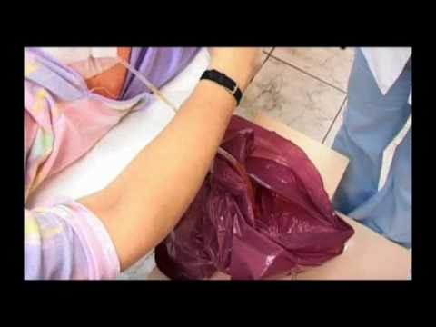 Podnieść powiększania piersi bez implantów