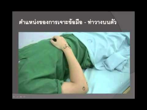 การรักษา Giardia ซึ่งยา