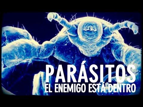 Parasites sa mga mata ng isang tao upang makakuha ng rid