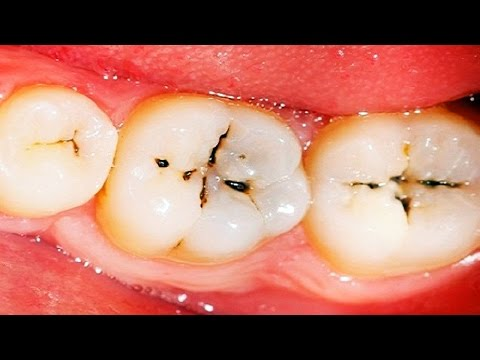Video How to Get Rid of Cavities | How to Reverse Cavities in Teeth