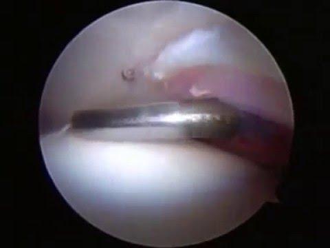 Folk Behandlung von Schmerzen in den Gelenken