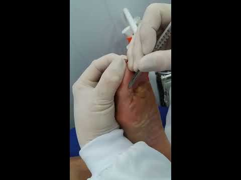 Hpv throat itchy