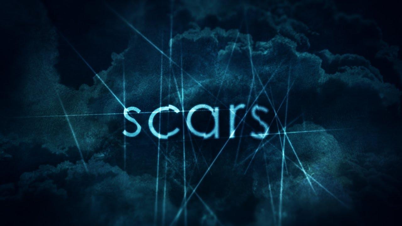 Dan Stevers – Scars