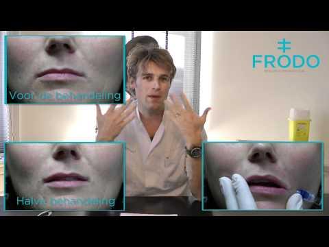 video Lipcorrectie thumbnail