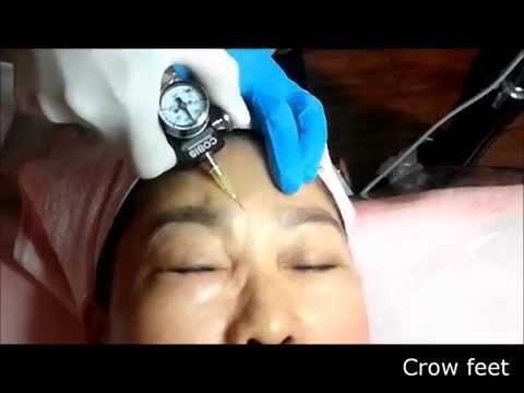Video facial pagpapabata, pagkatapos ng 40 taon