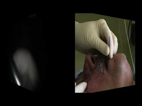 Aumentare e diffondere modifiche prostata