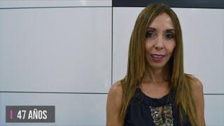 Botox y ácido Hialurónico - Testimonio de  MªLuisa Moreno - Clinica Dorsia Palma Vía Alemania