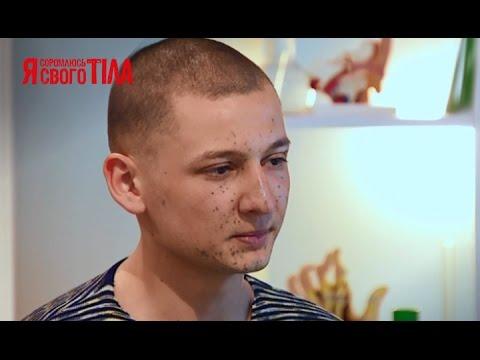 Виталий Кравченко хочет убрать последствия производственной травмы-Я соромлюсь свого тіла-26.03.15