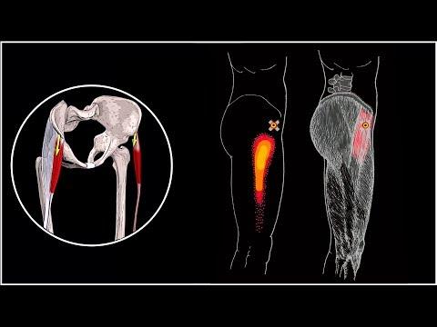 Какая мазь лучше при болях в мышцах и суставах