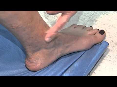 Buona posizione di medicina varicosity