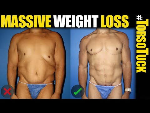 Massive Weight Loss with Torso Tuck Body Lift by Male Plastic Surgery