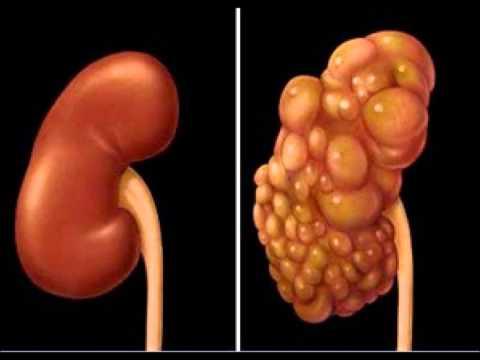 Crise hipertensiva com tosse