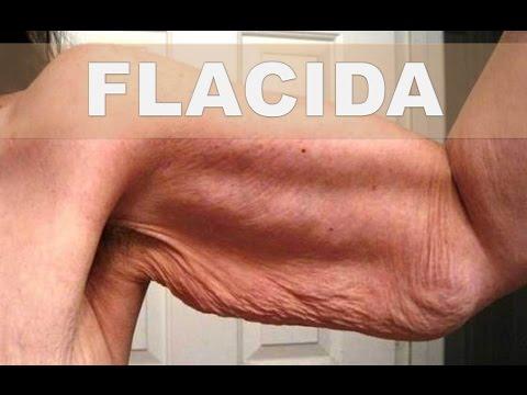 Ha adelgazado fuerte después de la desaparición de la vesícula biliar