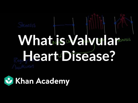 Video What is valvular heart disease? | Circulatory System and Disease | NCLEX-RN | Khan Academy