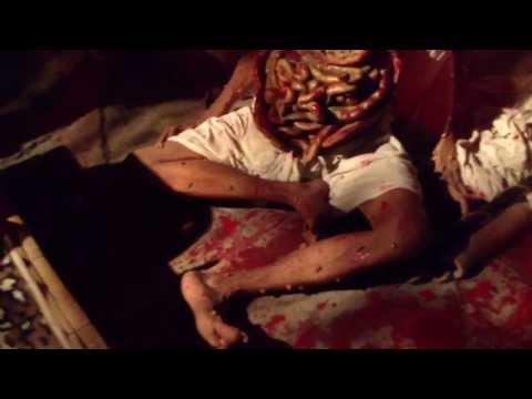 เส้นเลือดขอดมีอาการคัน
