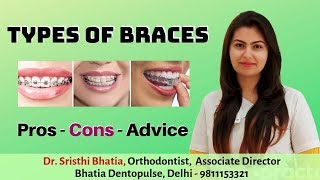 Types of Braces - Pros and Cons of Metal Braces | Dental Braces for your Teeth |  ब्रेसेस के प्रकार