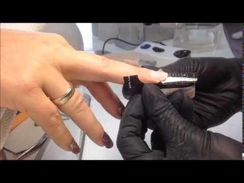 Wie den Nagel auf dem Finger des Beines nach der Nagelextraktion zu behandeln