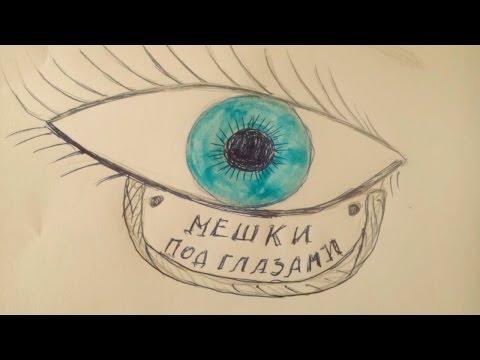 Тёмные круги под глазами причины у мужчин как лечить