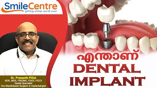 What is a dental implant? - Video