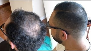 How To Cut And Fade Balding Hair